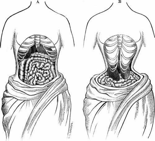 Фото: Деформация органов из-за корсетов